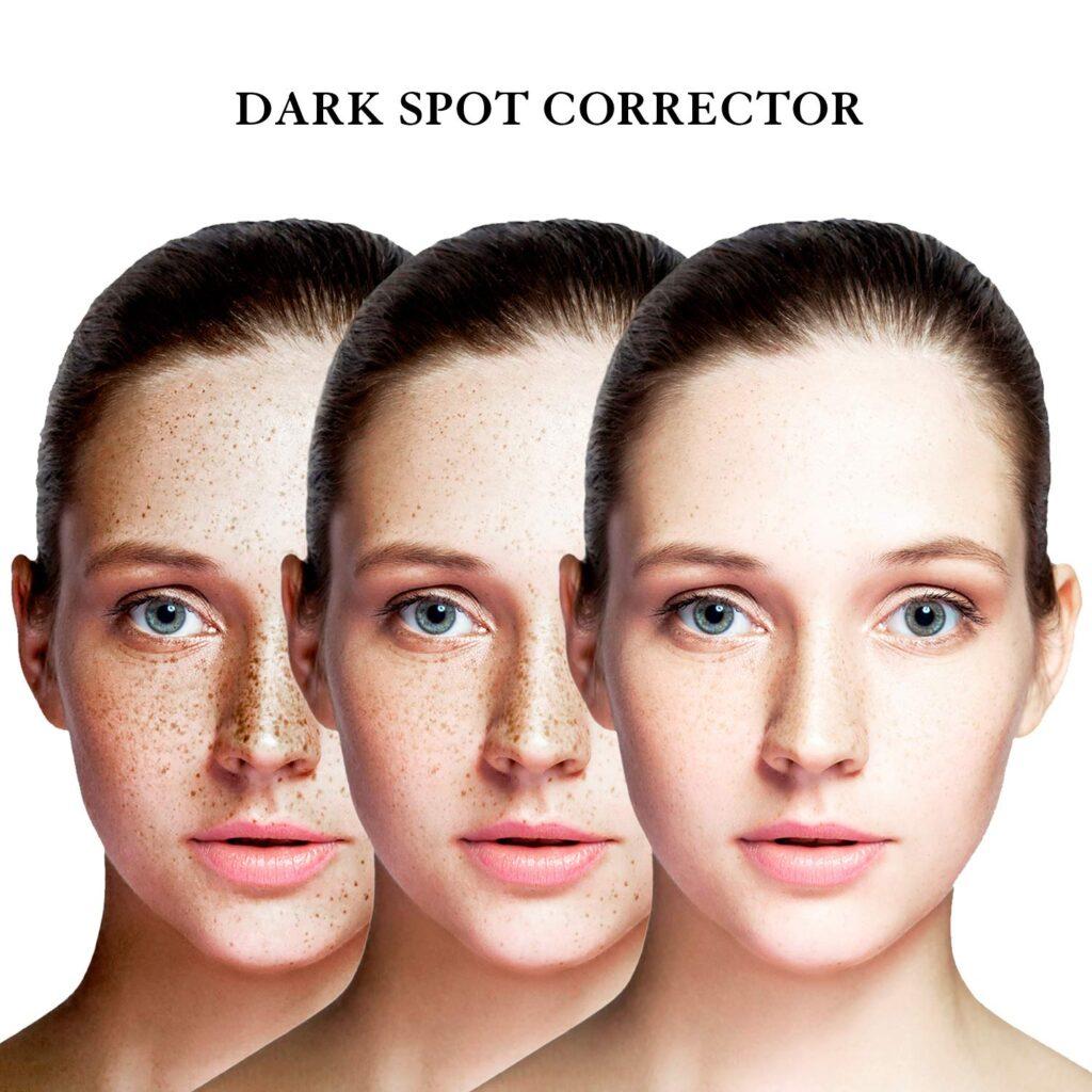 EnaSkin Dark Spot Corrector Reviews